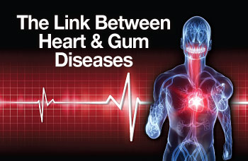 Gum disease increases heart disease risk