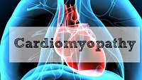 All You Need to Know About Cardiomyopathy!
