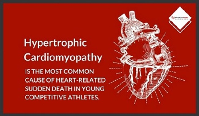Professor's Research Could Help Prevent Sudden Cardiac Death of Young Athletes
