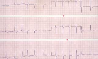 Sudden Cardiac Death/Ventricular Arrhythmia Risk in Atrial Fibrillation