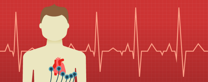 Heart screening: What about young non-athletes?