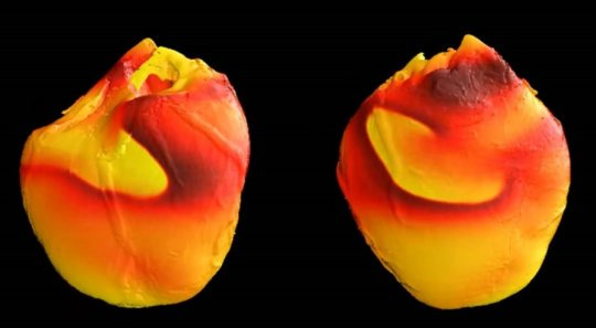 New source of dangerous electrical instability in the heart