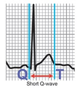 Cleveland clinic - short qt syndrome